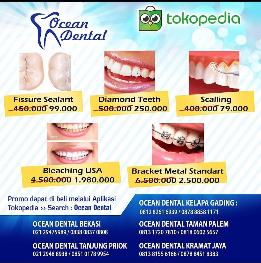 Potongan Harga Besar-Besaran untuk Pembersihan Karang Gigi Di Ocean Dental