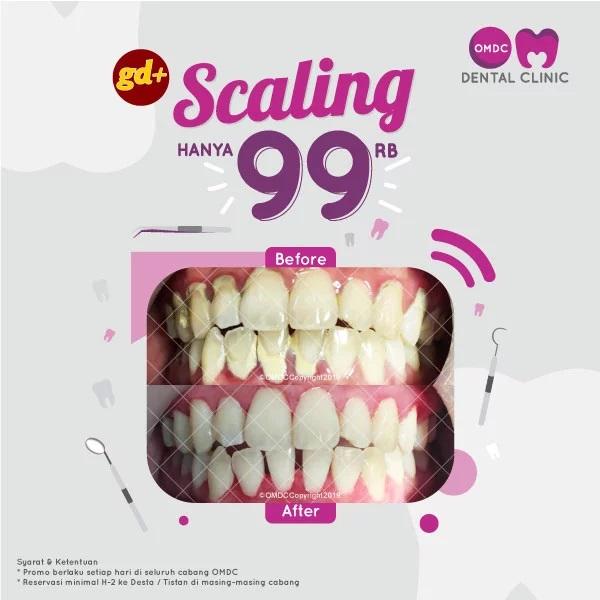 Promo OMDC Dental Clinic Spesial GD+, Scaling Seluruh Gigi Hanya Rp 99.000